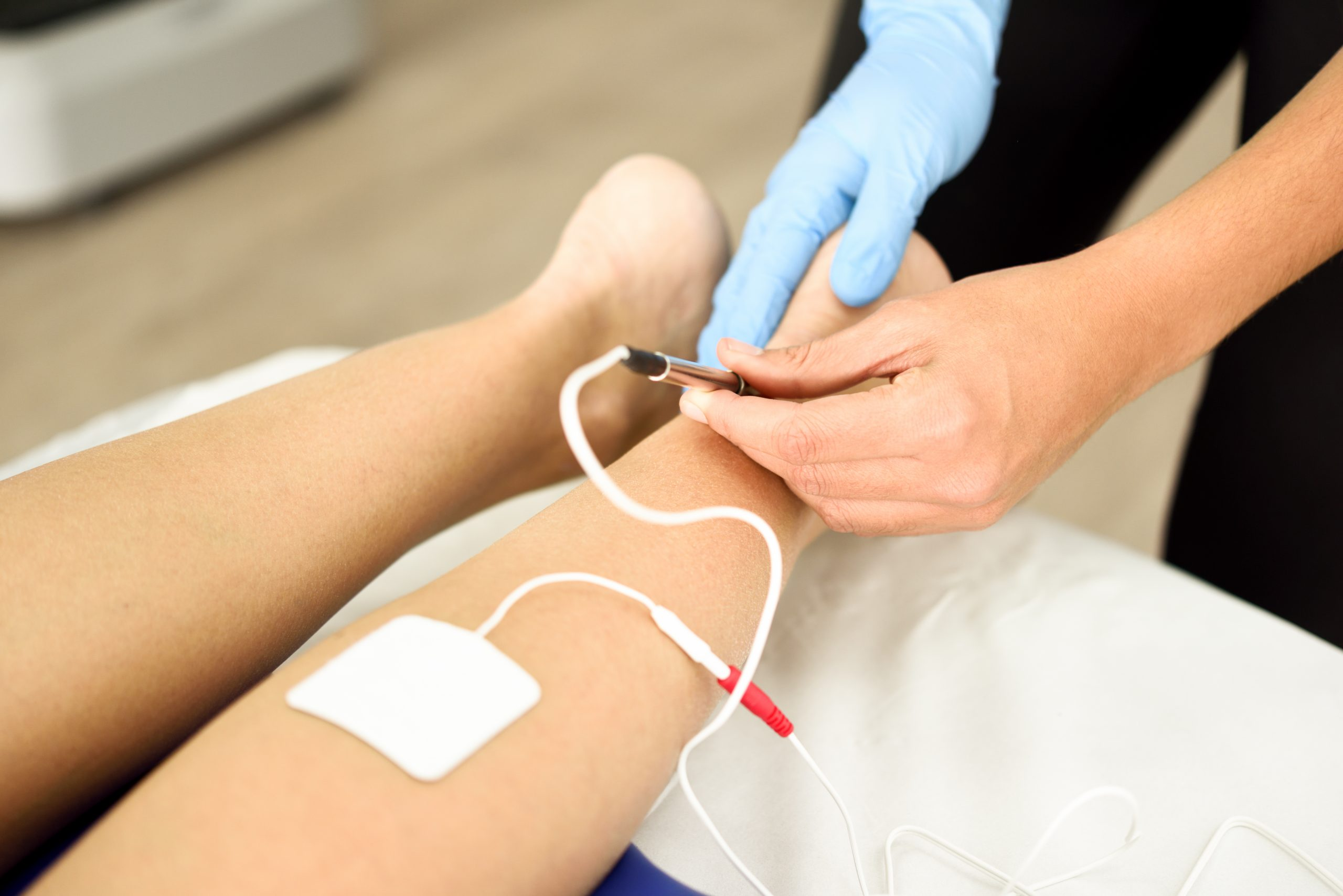 Electroacupuncture dry with needle connecting machine used by acupunturist on female patient for acupuncture guided by EPI Intratissue Percutaneous Electrolisis. Electro stimulation in physical therapy to ankle of a young woman in physiotherapy center.