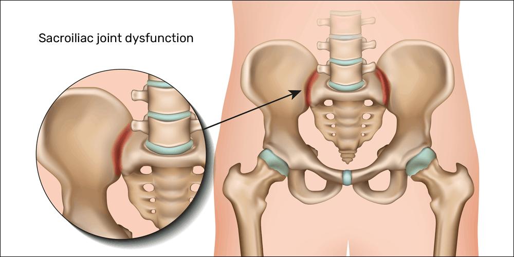 Sacroiliac joint dysfunction sij d